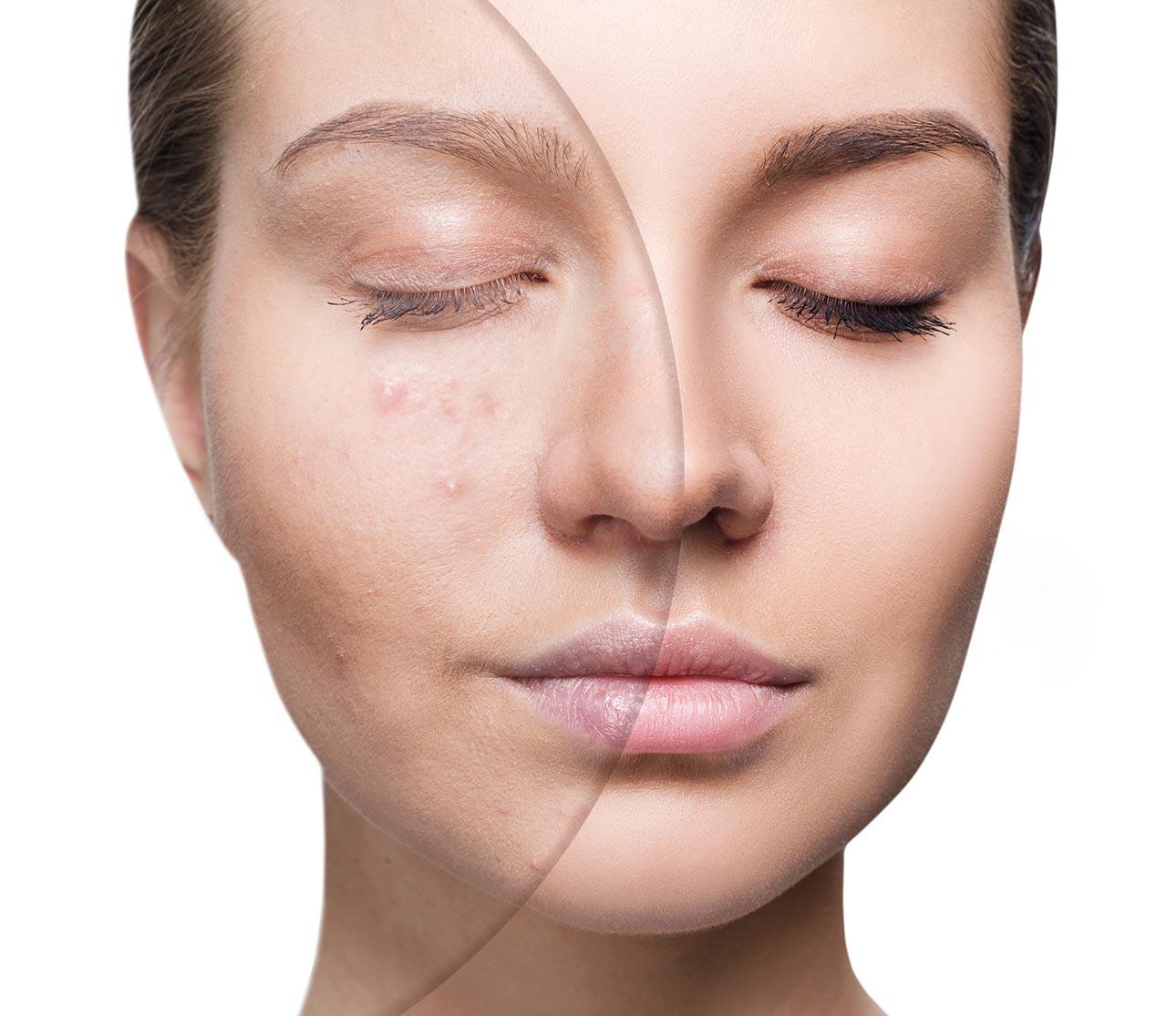 femeie cu acnee inainte si dupa tratament