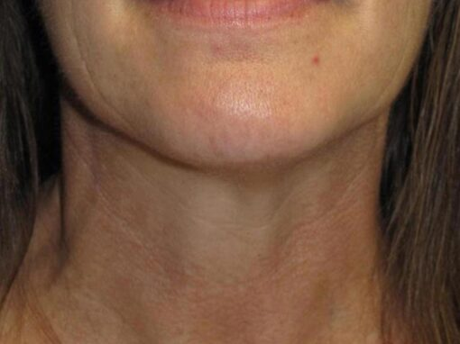 contur facial dupa tratament