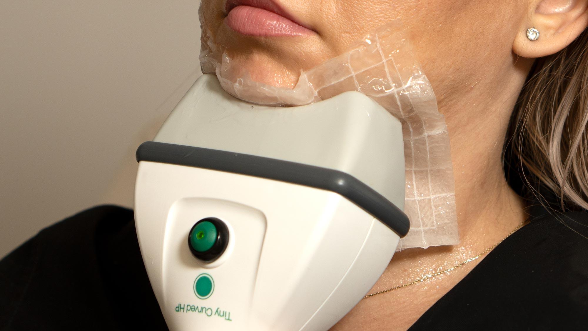 criolipoliza contur facial Cooltech Define