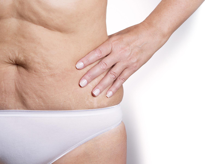 piele laxa fara tonus pe abdomen