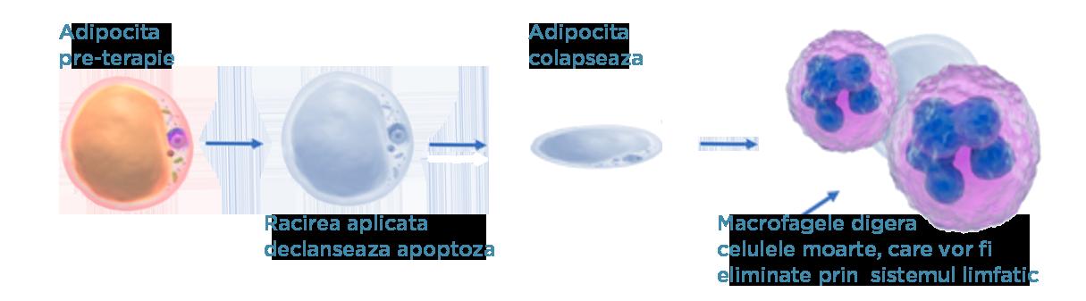 ilustrare apoptoza adipocite prin criolipoliza
