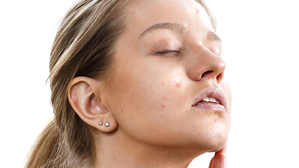 tanara frumoasa fata cu acnee, dupa tratament