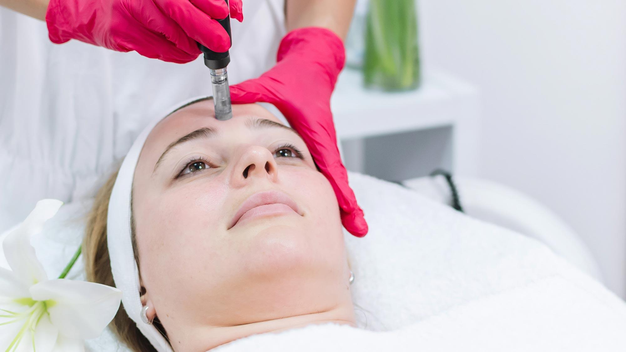 imagine fata femeie in timpul mesoterapiei cu micro-ace