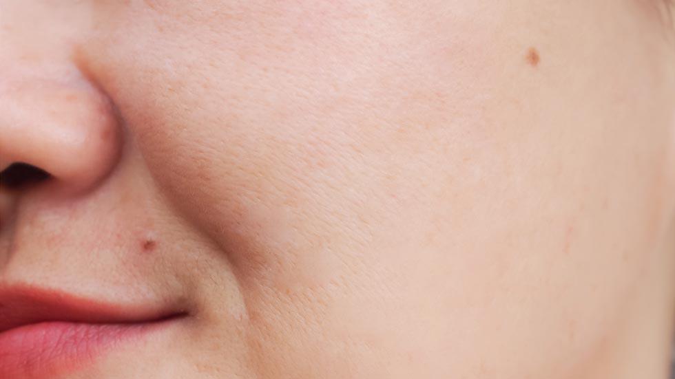 imagine detaliu pete pigmentare dupa efectuarea terapiilor de ameliorare