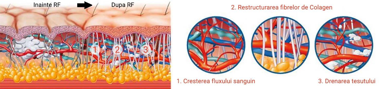 Radiofrecventa Dalyance ilustrare actiune la nivel celular
