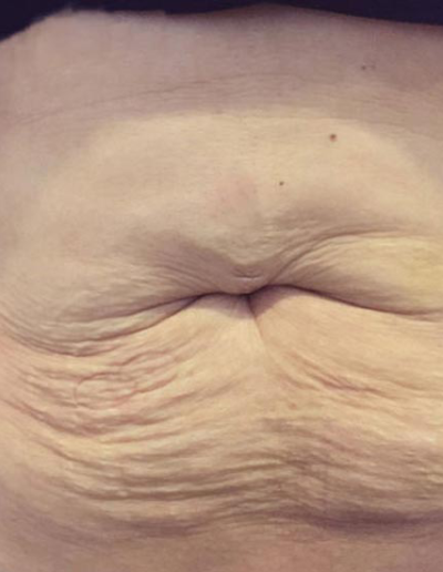 skin tightening radiofrecventa Dalyance