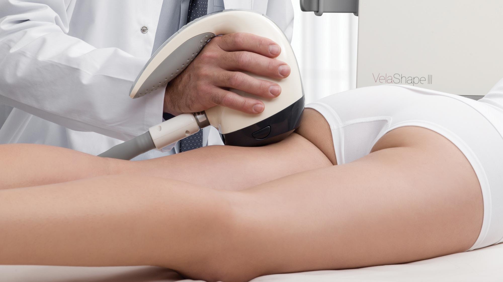 terapie tratare celulita Velashape 3 Alto Studio